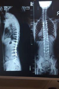 جراح عظام وعمود فقرى بالاسماعيلية