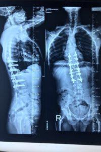 دكتور عظام شاطر بالسويس